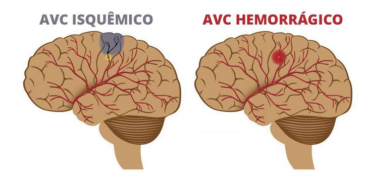 O que é o acidente vascular cerebral?